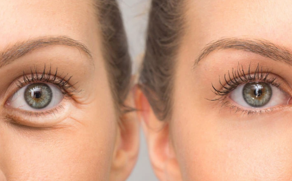 Eye wrinkles - causes and ways to erase them
