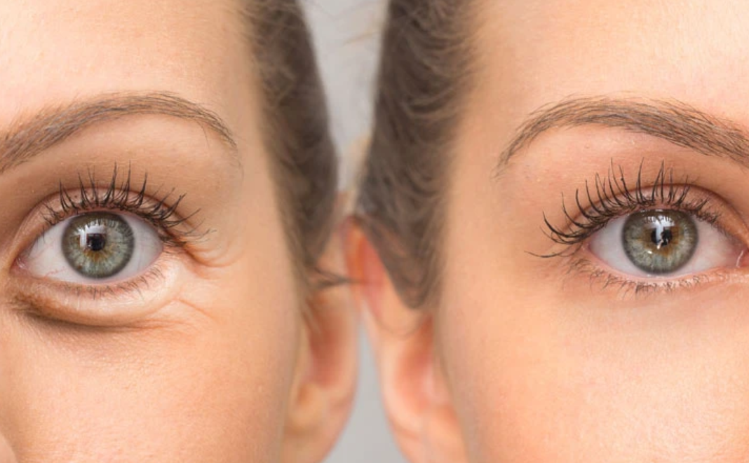 Eye wrinkles – causes and ways to erase them